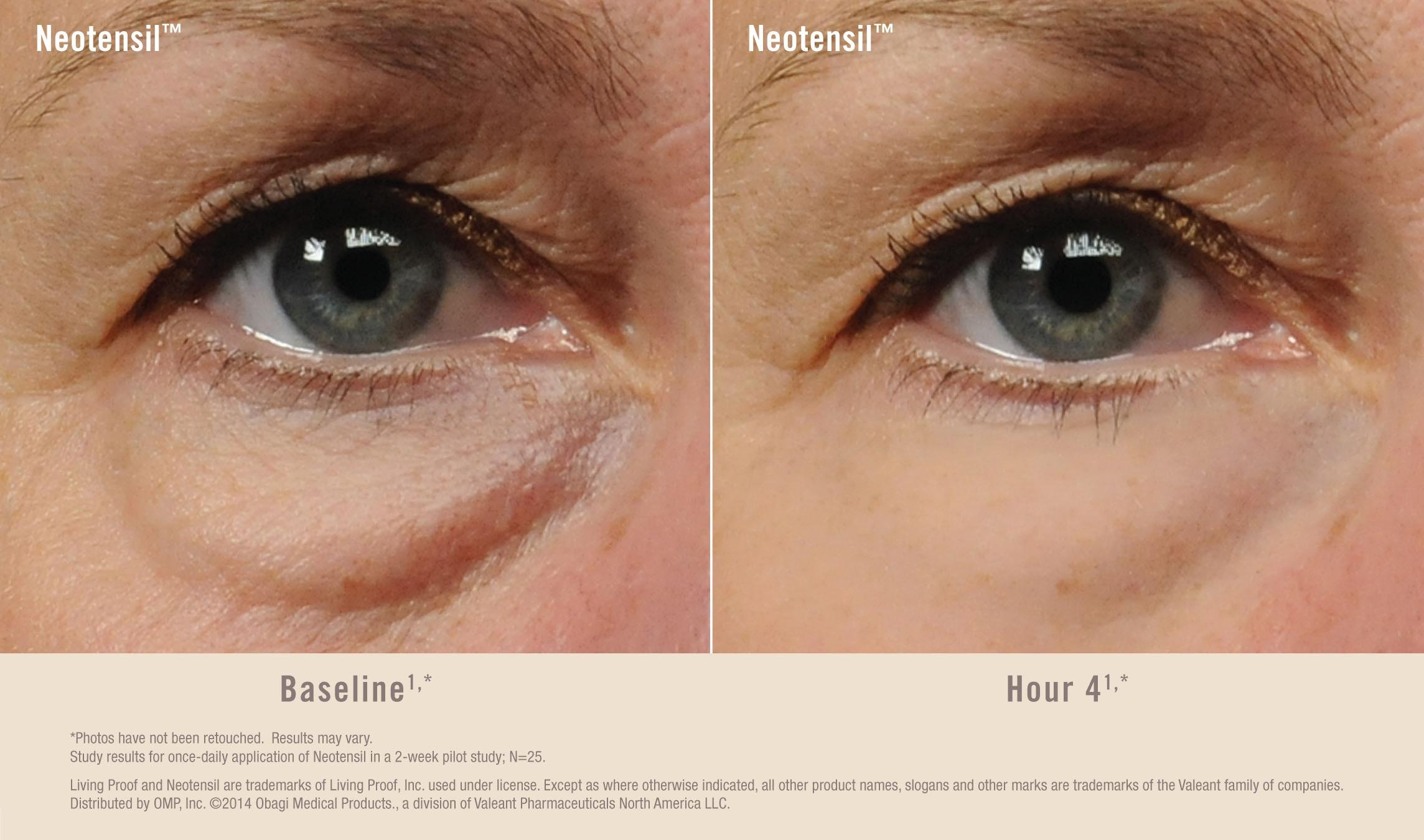 Under eye treatment
